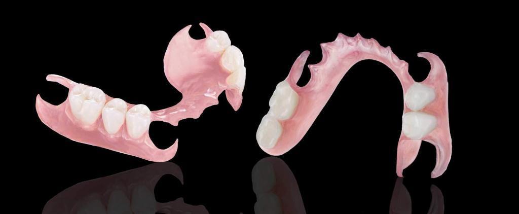Dentiere mobili flessibili in nylon senza palato Valplast