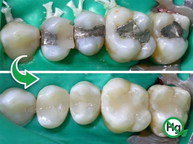 Dentista a Bari