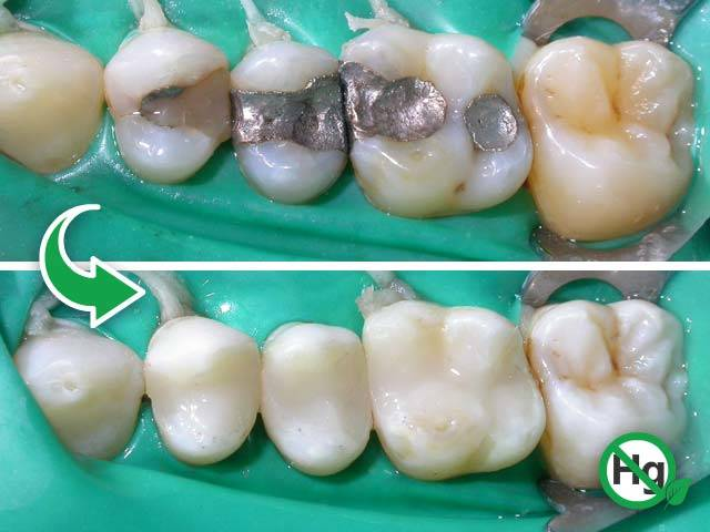 studioresta-rimozione-amalgama-prima-dopo-v01-05