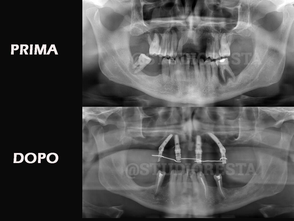 Solazzo-OPT-Prima-e-dopo-verticale