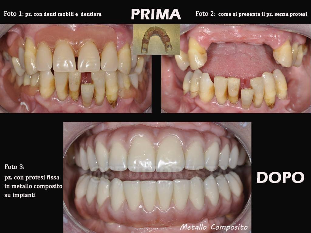 costi implantologia dentale