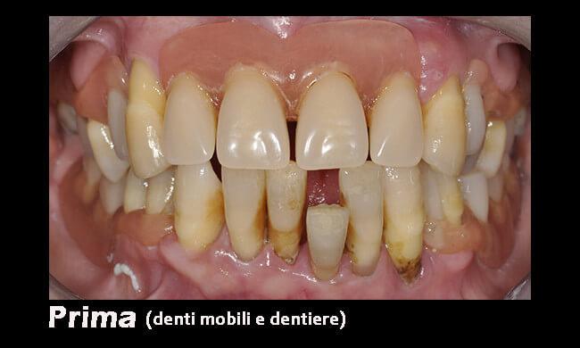 prima-con-dentiere