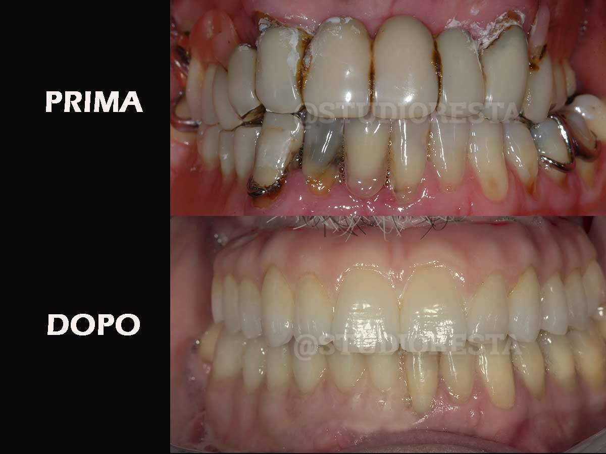 Impianti dentali foto prima e dopo