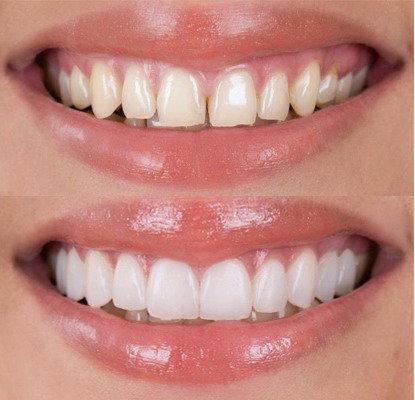 Faccette dentali quanto durano