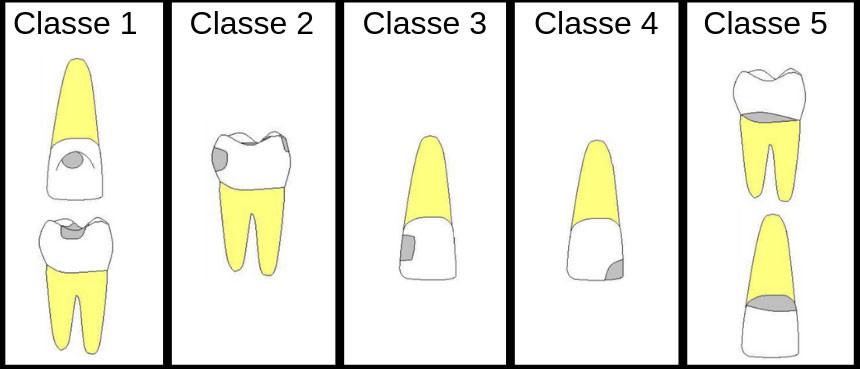 caria dente