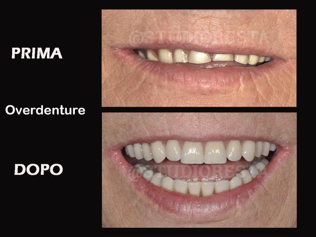 impianto dentario