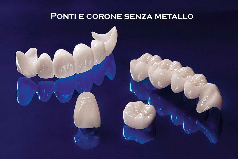protesi dentale