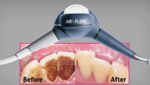 pulizia dentale costo
