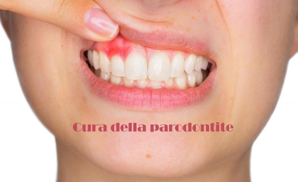 cure per parodontite