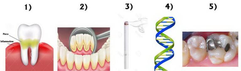 trattamenti parodontite
