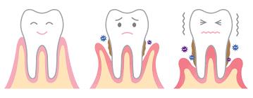 parodontite e piorrea