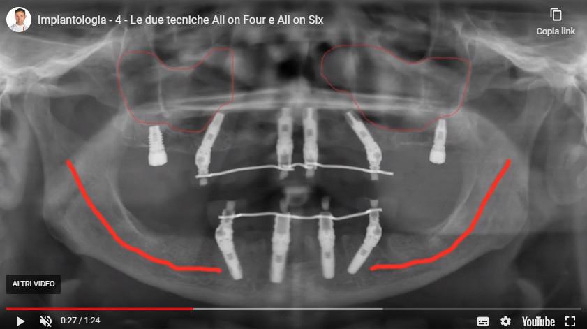 video impianti dentali