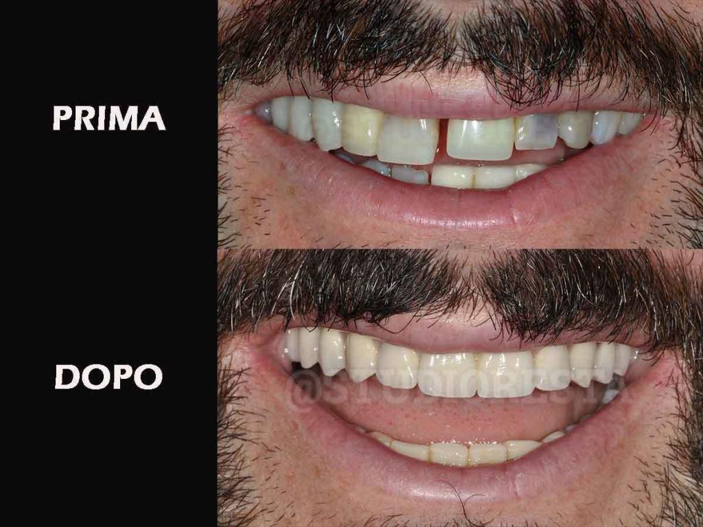 odontoiatria bari