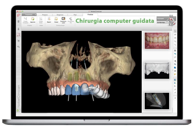 implantologia a carico immediato come funziona
