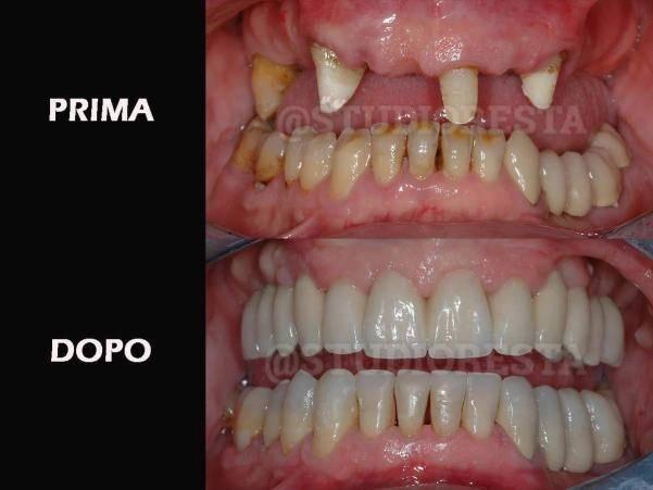 protesi dentale fissa senza osso