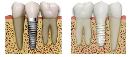 tipi di impianti dentali