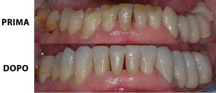 Denti bruxismo