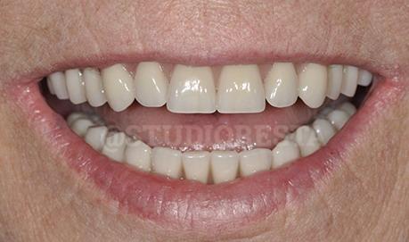 protesi dentarie mobili di ultima generazione