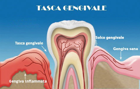 levigature denti