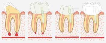 dente devitalizzato rotto cosa fare