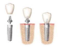perno dente devitalizzato