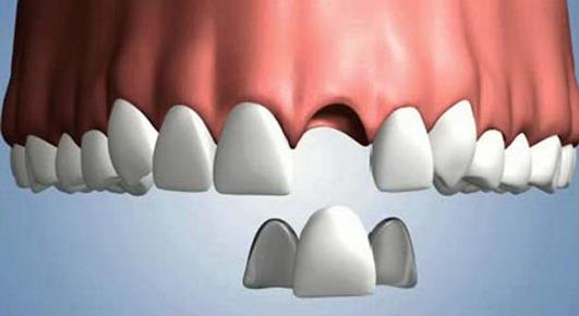 maryland dentale