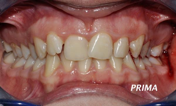 allineatore denti