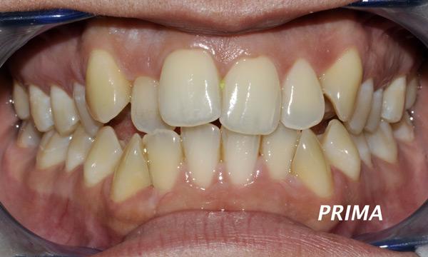 mascherine trasparenti denti