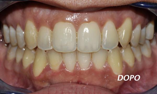 Mascherina per denti storti