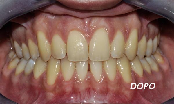 affollamento dentale apparecchio