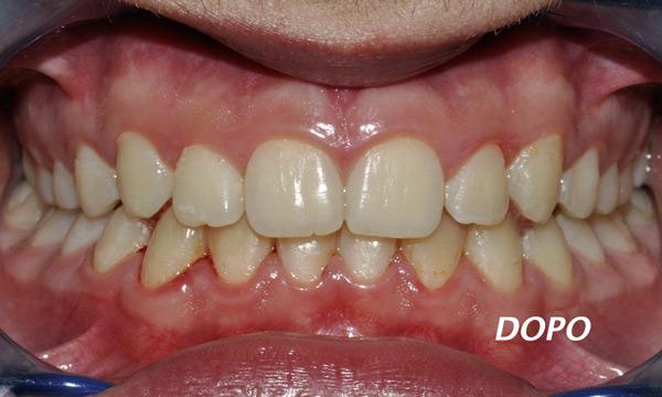 allineatori dentali costi