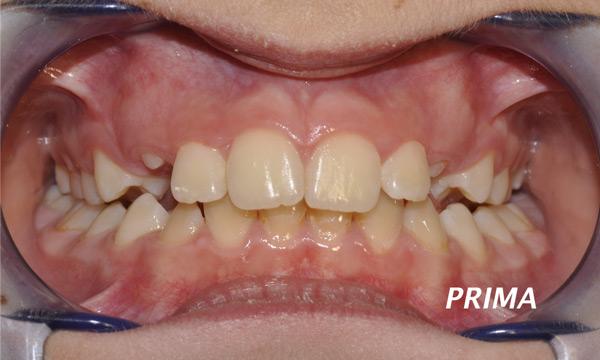 mascherina invisibile per denti