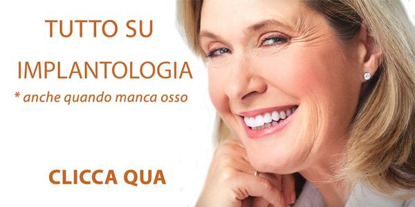 Protesi dentale costi