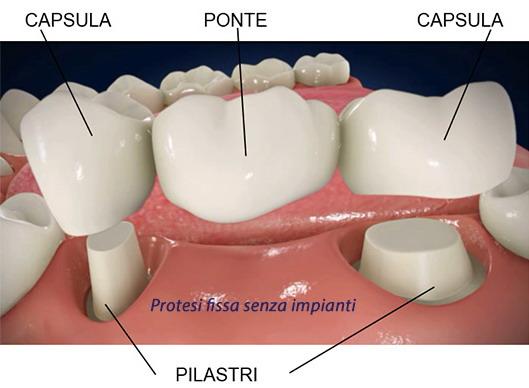 Denti fissi senza impianto