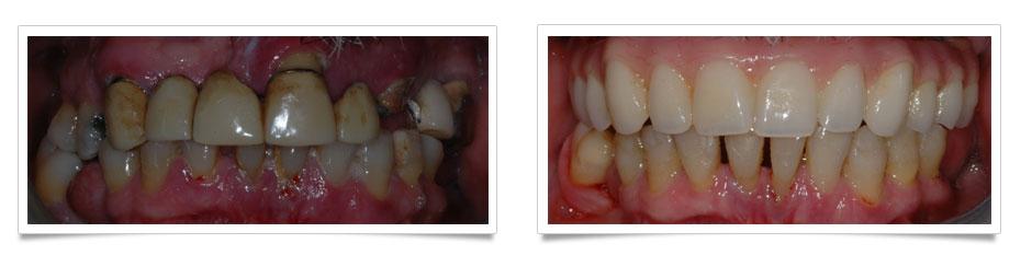 Implantologia-moderna-4